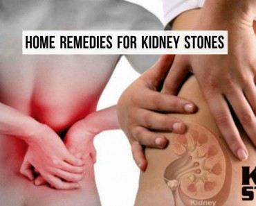 8-home-remedies-for-kidney-stones